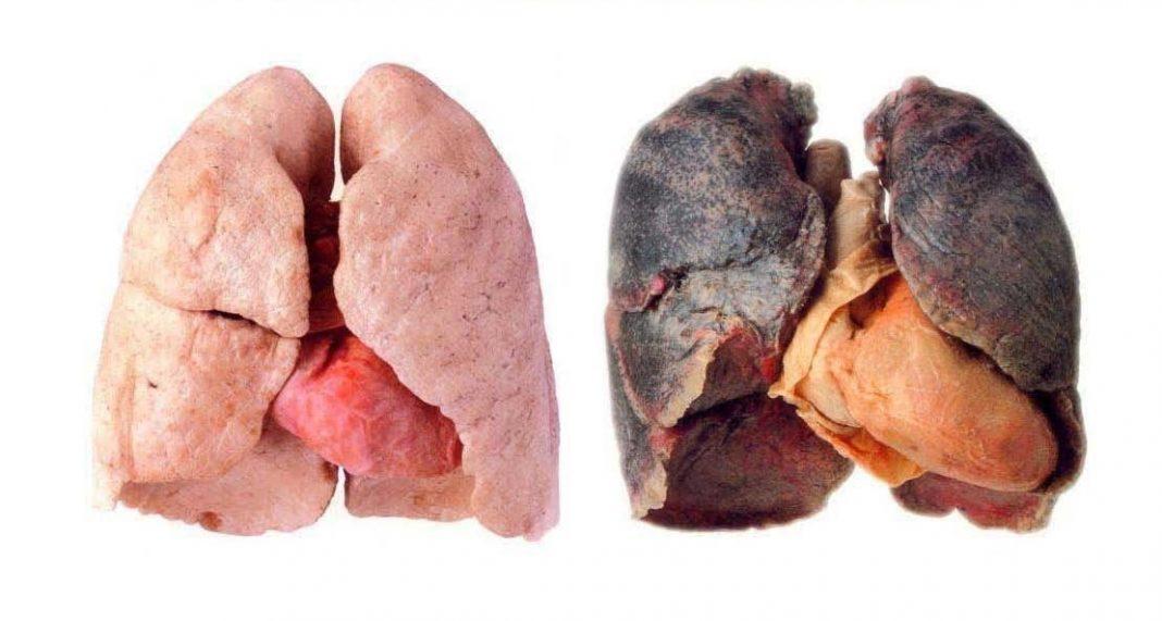 Lunge schmerzt nach aufhoren mit rauchen